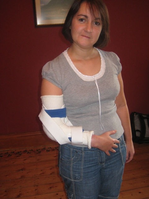 Tracy wearing the bent splint