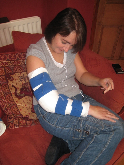 Tracy wearing the straight splint